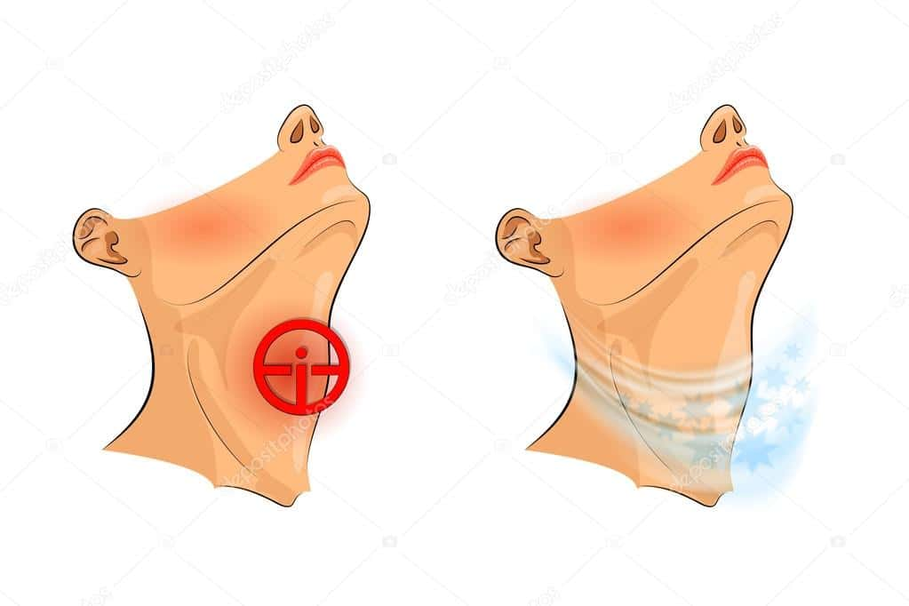 Tonsillitis Remedy: Tonsillitis can be caused by pollution, learn the symptoms and prevention!